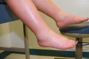 Отеки ног 25 неделя беременности