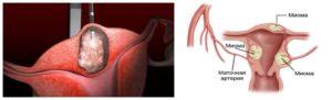 Симптомы миомы матки 8 9 недель