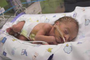 Недоношенный ребенок 28 недель