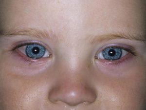 У ребенка 6 месяцев гноится глаз