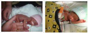 Ребенок родился в 22 недели
