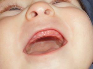 Когда режутся первые зубки у детей
