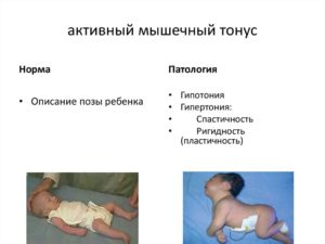Как понять что у малыша тонус?