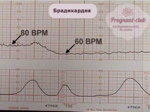 Брадикардия у плода при беременности 6 недель