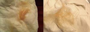 Беременность 9 недель выделения коричневого цвета