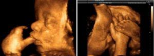 40 41 Неделя беременности схваток нет