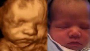 Роды 36 недель беременности повторнородящих