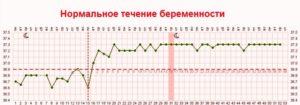 11 Неделя беременности температура 37 3
