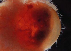 Кровь 7 8 неделе беременности