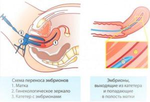 8 Неделя после переноса эмбрионов