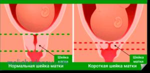 Короткая шейка матки при беременности 27 недель