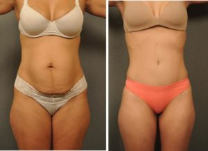 Как подтянуть кожу после похудения форум?