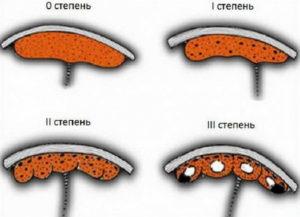 Преждевременное старение плаценты на 33 неделе беременности