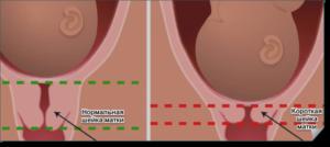 Короткая шейка матки беременности 23 недели