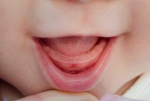 Во сколько начинают резаться первые зубки