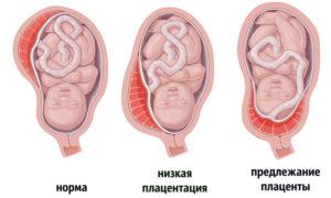 Низкая плацента при беременности 12 недель