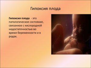Гипоксия плода на 36 неделе беременности
