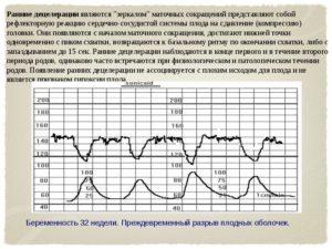 Признаки гипоксии плода на 34 неделе