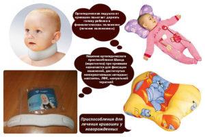 Как лечить кривошею в домашних условиях?