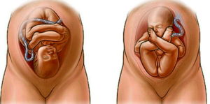 Тазовое предлежание плода на 38 неделе беременности