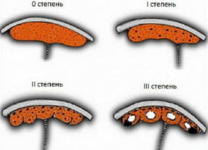 31 Неделя беременности старение плаценты