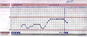 Температура 37 18 неделе беременности