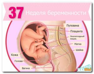 37 Неделя беременности подташнивает