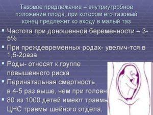 35 Неделя беременности ягодичное предлежание
