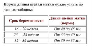 Длина шейки матки 2см на 29 неделе