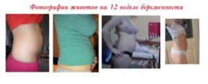 12 Недель беременности тяжесть животе