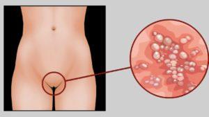 Генитальный герпес на 37 38 неделе беременности