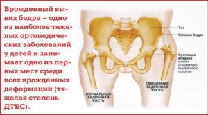 Болят кости таза при беременности 30 недель
