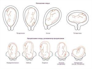 Низкое расположение плода при беременности 30 недель