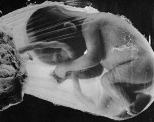 Гипотрофия плода при беременности 34 недель