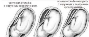 Отслойка плаценты 16 неделе беременности