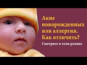 Как отличить аллергию от акне у новорожденных?