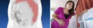 Запор на 37 неделе беременности что делать