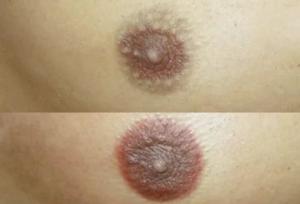 Болит ли грудь на первых неделях беременности