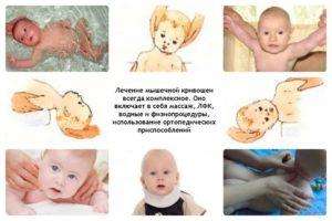 Что делать у новорожденного кривошея?