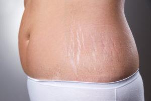 Как убрать растяжки после беременности на животе?