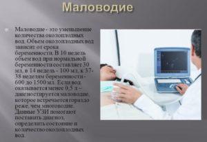 Маловодие при беременности 37 38 недель
