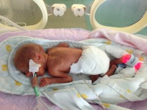 Выживают ли дети рожденные 32 недели