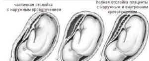 Отслойка плаценты на 40 неделе беременности
