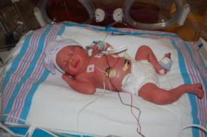 Рождение на 30 неделе беременности