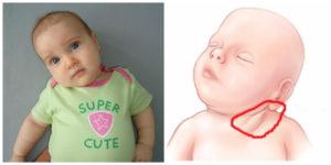 Спазм шеи у ребенка