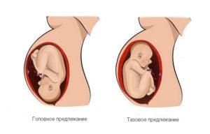Головное предлежание плода при беременности 21 неделя