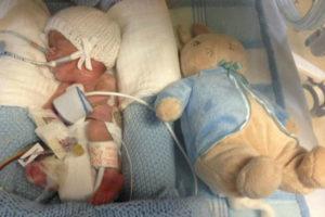 Выживают ли дети рожденные в 26 недель