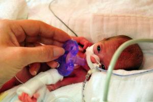 Искусственные роды в 25 недель беременности
