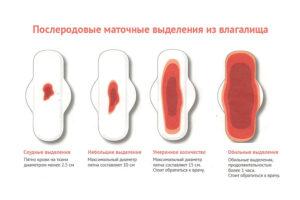 6 Недель после родов кровянистые выделения