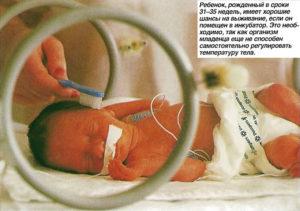 Роды на 31 неделе беременности